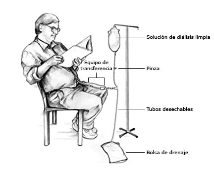 Peritoneal_dialysis_PI